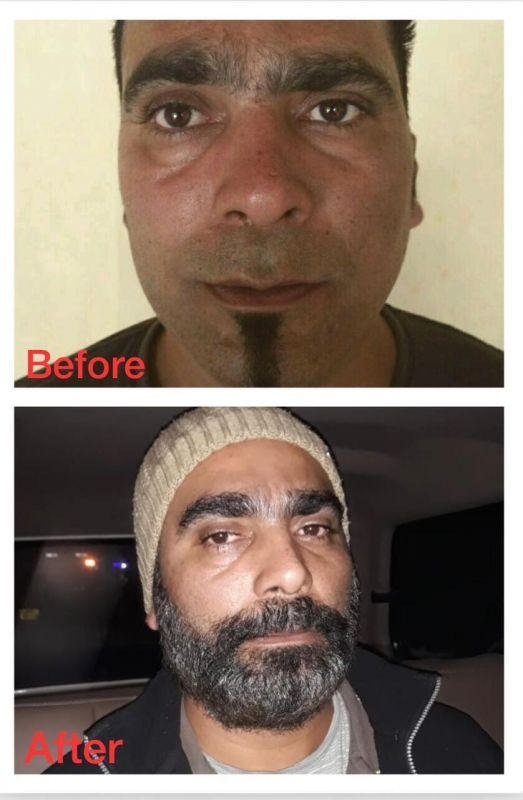 Gurwinder Singh alias Baba